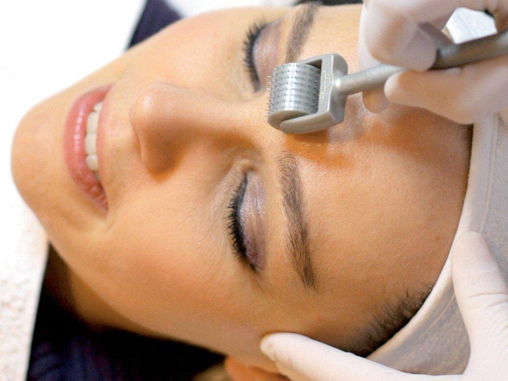 derma-roller-update-acne-scars