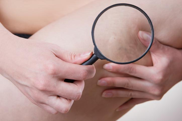 Varicose veins close up