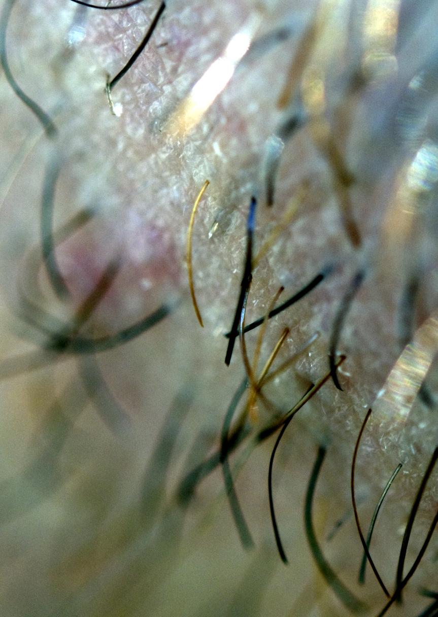 Hair folicules