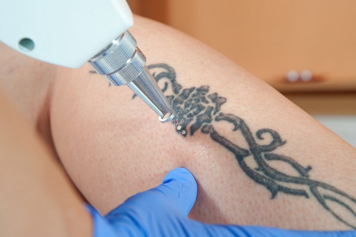 laser tattoo removal from leg