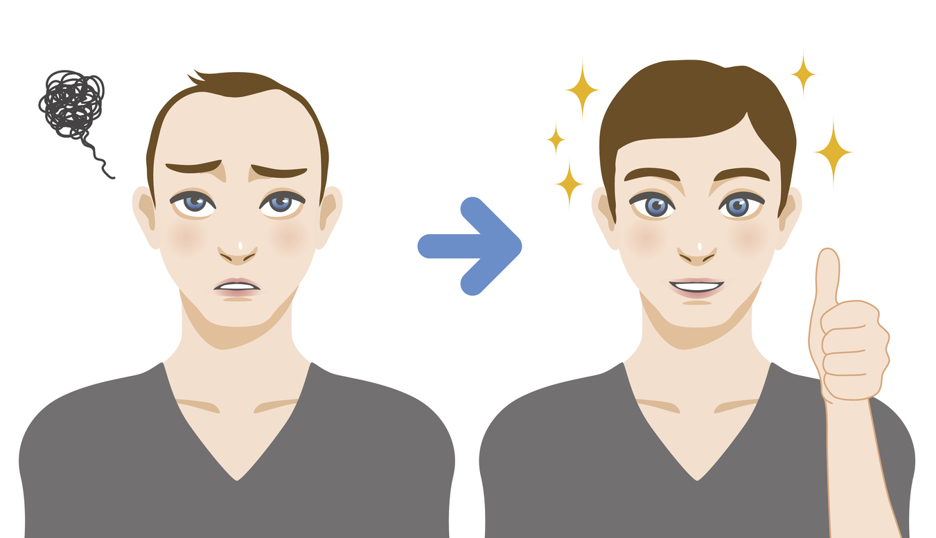 men's thinning hair treatment before after image illustration