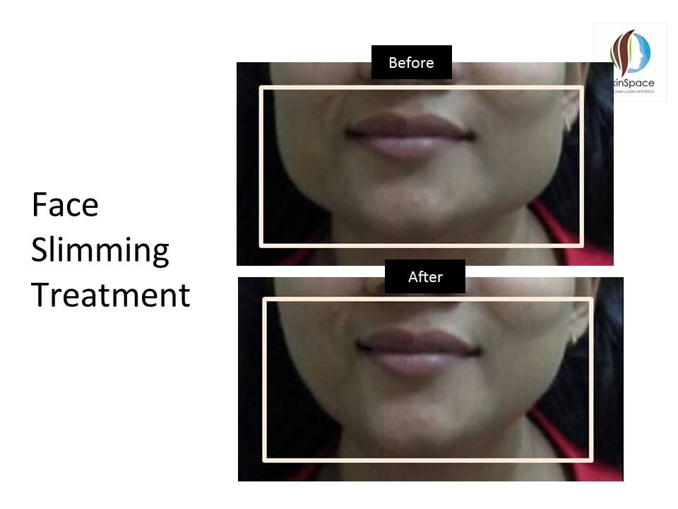 Botox Treatment (12)