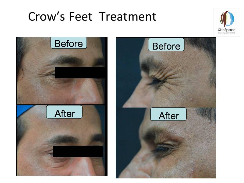 Botox Treatment (6)